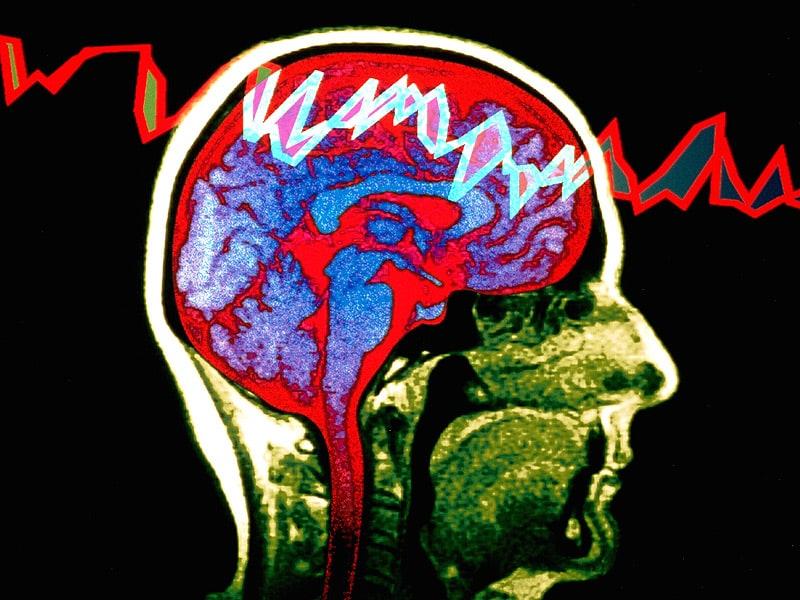 ps_151208_epilepsy_brain_800x600